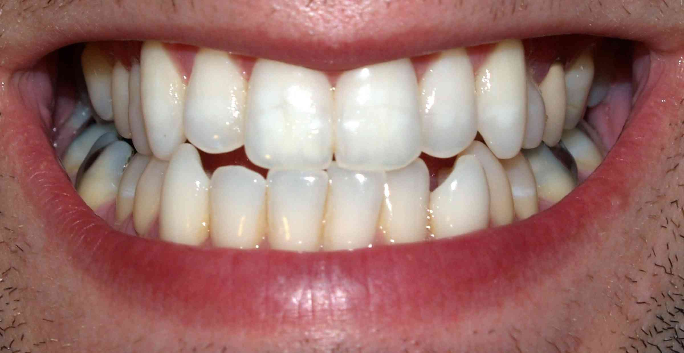 My Missing Teeth Can I replace my missing teeth?